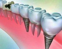 Зубные импланты и их многообразие