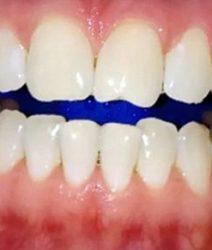 Клиническое отбеливание эмали зубов по технологии Zoom