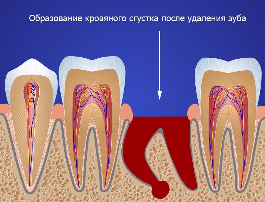 Сколько может болеть зуб после его удаления