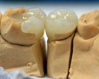 Виды пломб для зубов и их отличия