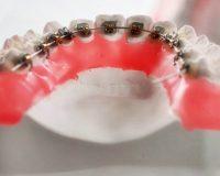 Какая вероятность того, что после снятия брекетов зубы могут вернуться в свое прежнее состояние?
