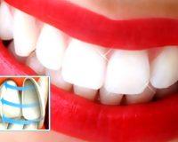 Художественная реставрация зубов  керамическими накладками