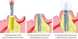 установки имплантов Dentium в рассрочку