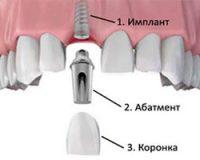 Можно ли ставить импланты зубов?
