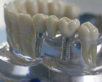 Протезирование зубов под ключ