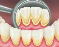 Снятие зубных отложений и удаление зубного камня