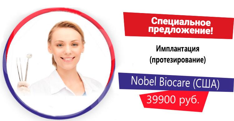 Установка имплантата Nobel