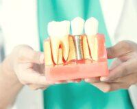 Имплантация зубов в кредит