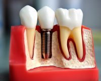 Имплантация зуба за один день в Москве