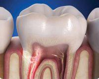 Как снять зубную боль под коронкой?