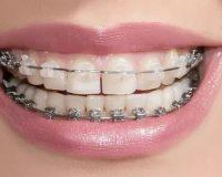 Обязательно ли удалять зубы мудрости перед установкой брекетов
