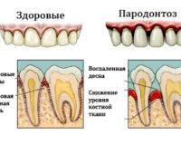 Лечение пародонтоза в Москве