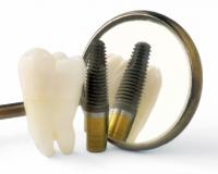 Какие анализы нужно сдать перед имплантацией зубов?