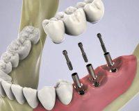 Чем можно заменить имплантацию зубов?