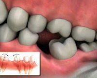 Аномалии зубных рядов