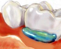 Аппликационная анастезия в стоматологии что это?