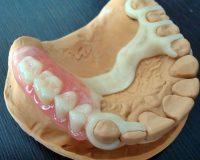 Зубной ацеталовый протез