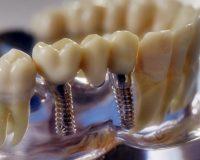 Имплантация зубов, восстановление целостности зубного ряда