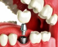Имплантация зубов по акции
