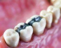 Как влияет пломба на зубы
