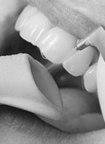 Air Flow – чистка зубов ультразвуком