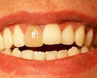 Что такое мертвый зуб?