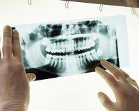 Для чего делают рентген зубов?