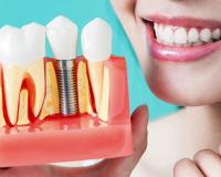 Имплантация зубов — это безопасно?