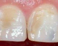 Что такое эрозия зубов