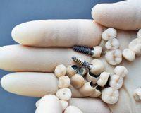 Зубное протезирование: циркониевые коронки