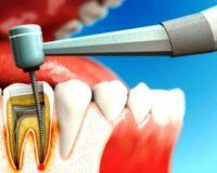 Лечение зубов под наркозом в Москве
