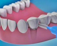 Правильный уход за зубными имплантами