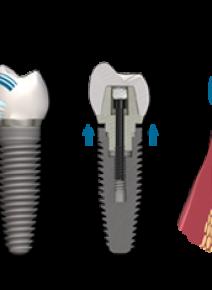 Методика установки имплантов зубов