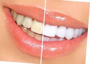 отбеливание зубов виды и отзывы