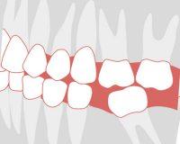 Почему необходимо ставить зубные протезы на место удаленных зубов?