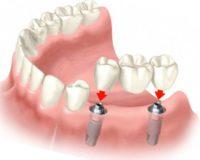 Что такое протезирование зубов в рассрочку?