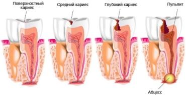 Лечение пульпита и периодонтита