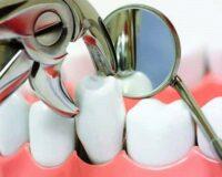 Удалить зуб под наркозом