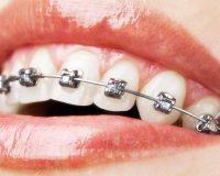 Выравнивание зубов брекетами у взрослых