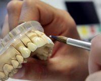 Как влияет материал коронки на состояние зуба