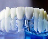 Существует ли разница при уходе за имплантами и уходе за зубами?