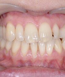 Восстановление верхнего зубного ряда